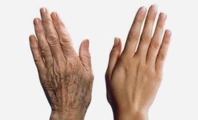 manchas de las manos