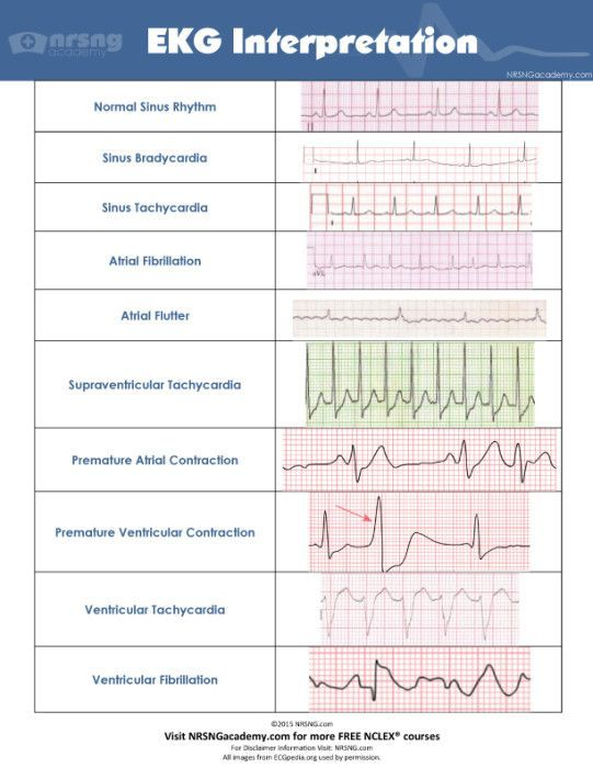 ekg measurement and interpretation at rest A normal ecg is illustrated above note that the heart is beating in a regular sinus rhythm between 60 - 100 beats per minute (specifically 82 bpm.