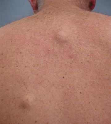 Exactly What Is A Sebaceous Cyst A Description Of What A