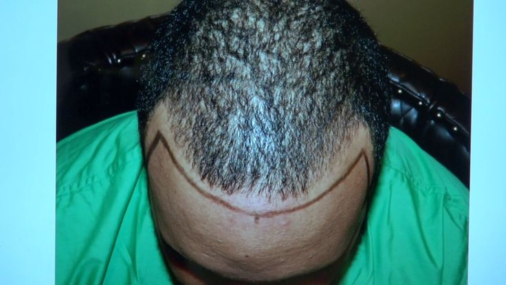 Black Hairline Edges Hair Transplant Before After Restoration Surgery Di...