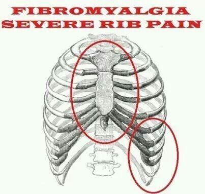 pregabalin costochondritis treatment