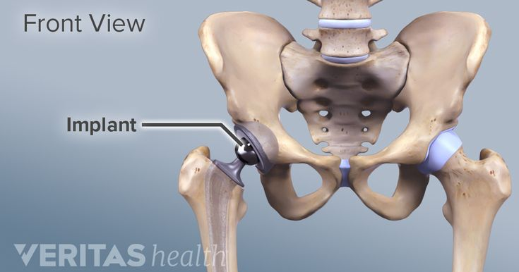 Anterior Vs Posterior Hip Replacement Surgeries Hip Replacement Surgery Total Hip Replacement Hip Replacement