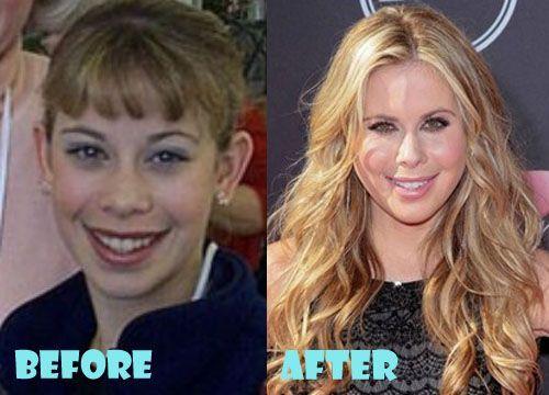 Tara Lipinski Plastic Surgery Before and After –