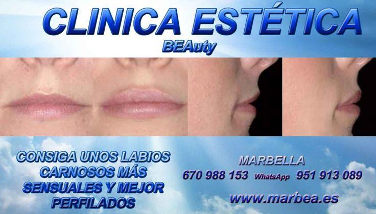 AUMENTO LABIOS MARBELLA , AUMENTAR LABIOS MARBELLA ,VOLUMEN LABIOS MARBELLA ,   http://www.marbea.es/medicina-estetica-facial/aumentar-labios-marbella-aumento-volumen-labios/  MARBELLA TRATAMIENTOS PARA DAR MAS VOLUMEN A LOS LABIOS DE FORMA NATURAL SIN CIRUGIA | AUMENTO DE LABIOS - COMO AUMENTAR EL VOLUMEN DE LOS LABIOS DE FORMA NATURAL SIN CIRUGIA EN MARBELLA | MARBELLA RELLENOS RELLENADOR LABIAL  LABIOS DE FORMA NATURAL SIN CIRUGIA