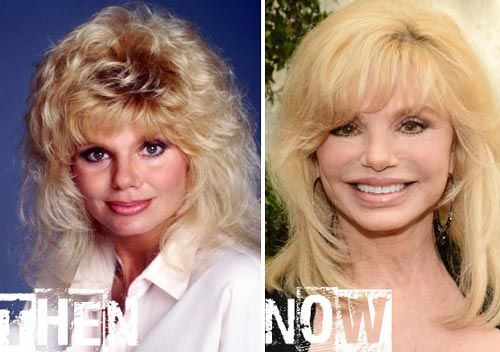Celebrity Loni Anderson Plastic Surgery Before After - http://www.celeb-surgery.com/celebrity-loni-anderson-plastic-surgery-before-after/?Pinterest