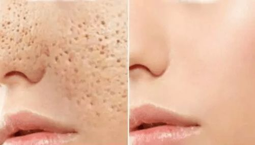 3 DAYS AND ALL OPEN PORES WILL DISAPPEAR FROM YOUR SKIN FOREVER