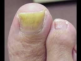 You have to see to believe it  toe fungus tips