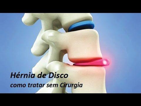 Hérnia de disco Como Tratar sem Cirurgia