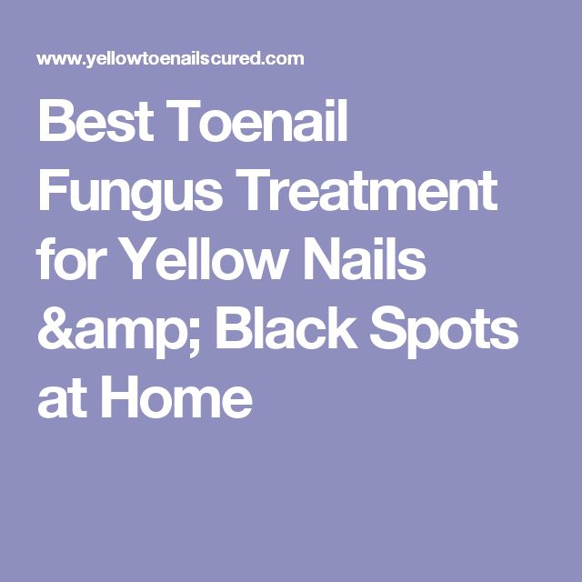Best Toenail Fungus Treatment for Yellow Nails & Black Spots at Home