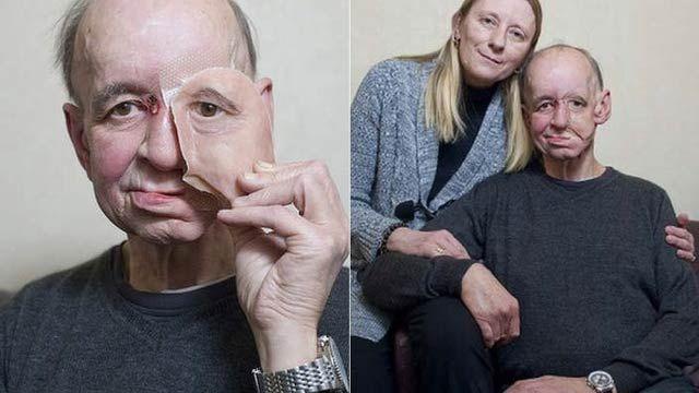 医療の現場にて、3Dプリンターで新たな挑戦が。今までにも3Dプリンターで義肢の制作に挑戦した医師はいました。が、Eric Mogerさんの3...