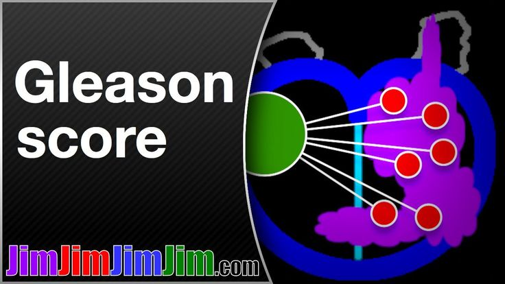 Gleason score in advanced prostate cancer - WATCH VIDEO HERE -> http://bestcancer.solutions/gleason-score-in-advanced-prostate-cancer     Gleason score tells how aggressive a prostate cancer is. It can affect the treatment – surgery, radiation or hormone therapy – that a doctor recommends. Jim (of JimJimJimJim.com) is not a doctor, but a man with a high Gleason score. Jim uses photos of real prostate cancer biopsy...