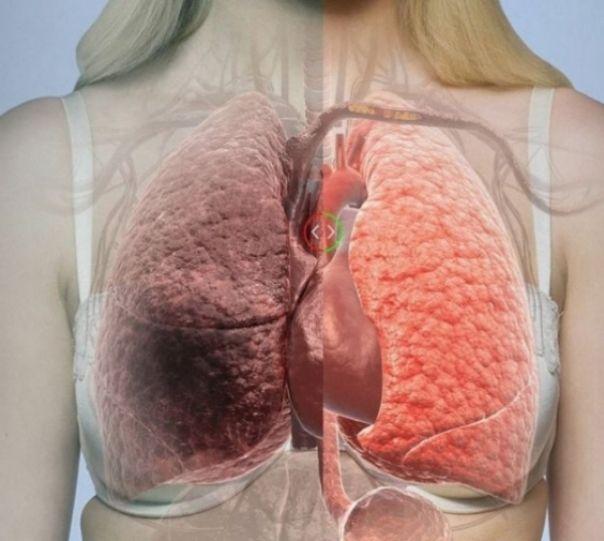 Reteta cu hrean este un adevarat medicament pentru toate bolile de plamani. Acesta este un remediu folosit in special impotriva pneumoniilor recidivante, a bronsitelor cronice si a tuberculozei pulmonare. Pe langa efectele puternic antibiotice ale hreanului, acest preparat este si … Continuă citirea →