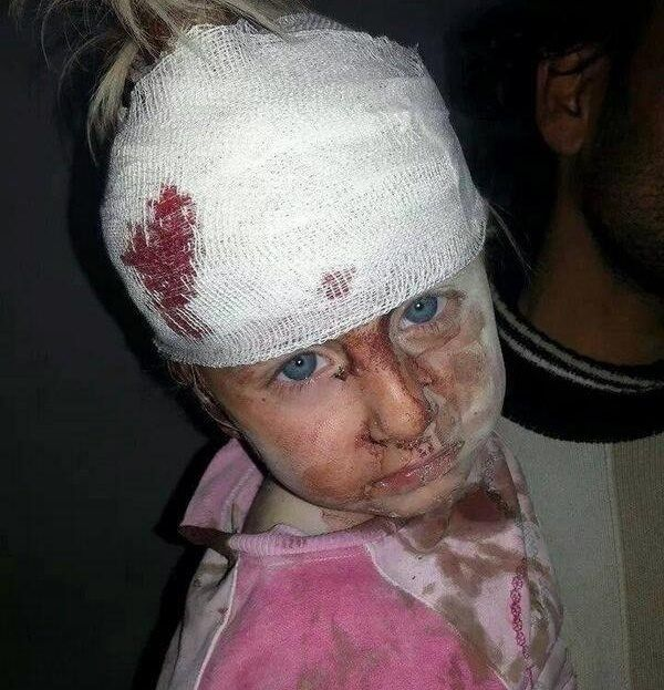 Syrian children at war - Why?????????????