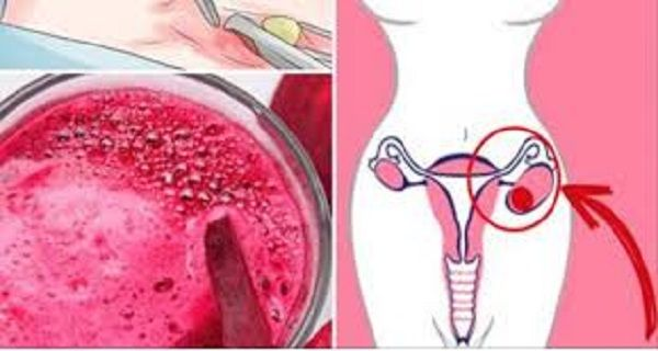 When My Gynecologist Detects A Cysts Or Fibroids, I Only Drink This And All My Problems Disappear In 4 Days! – Natural Medicine House