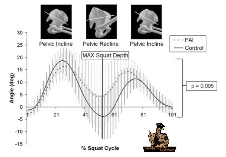 Il conflitto femoro acetabolare (FAI) influisce sullo squat (Dolore all'anca) – Ticinosthetics GainzSchool | Ticinosthetics Gainzschool