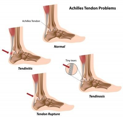 Achilles tendonitis is a common overuse injury in runners. Sufferers often experience a dull or sharp pain along the Achilles tendon--usually close to the heel on the back of the ankle.