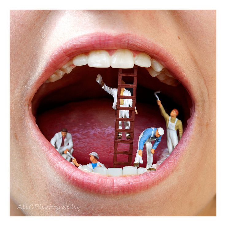 Tooth Whitening | Flickr - Photo Sharing!