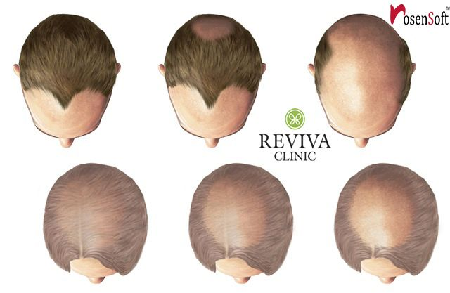Reviva clinic provides hair loss therapy in india for both genders furthermore Cost of hair transplantation is satisfactory at reviva.