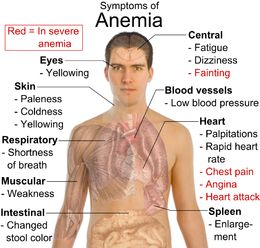 THERAPIES4ALL BLOG: Are You Anemic? Who is at Risk? #Anemic #Anemia