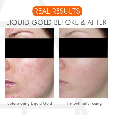 Liquid Gold - the real deal. You can clearly see the results after just 1 month. #liquidgold #resurfacing #skincare #acne