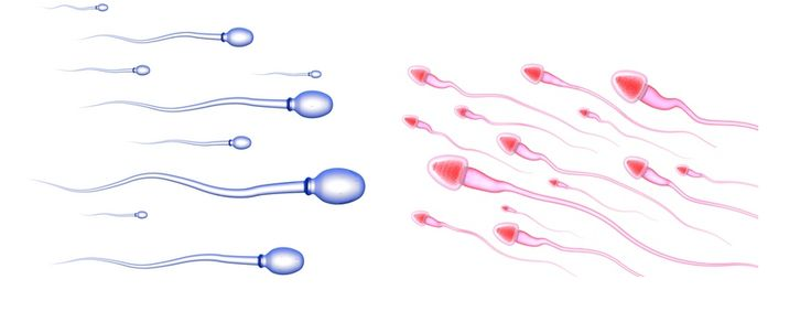 Want to Know How to Get Pregnant with a Boy or How to Conceive a Girl?  It's All About the Sperm!