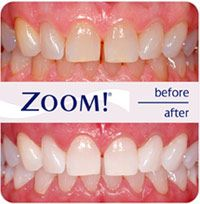 Tooth Whitening Bromley