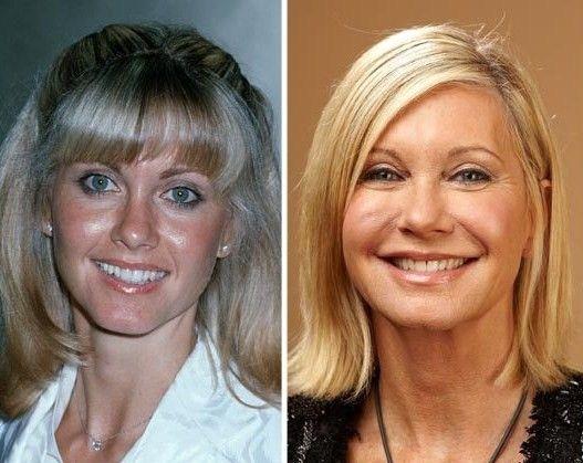 Olivia Newton-John Cosmetic Surgery? www.DrWigoda.com #plasticsurgery