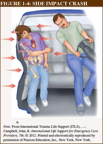 357 best Forensic pathology - blunt force trauma images on ...