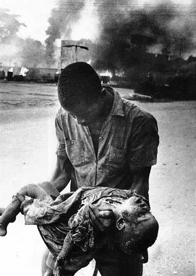 This is from the war in Biafra. I couldn't find the photo credit.