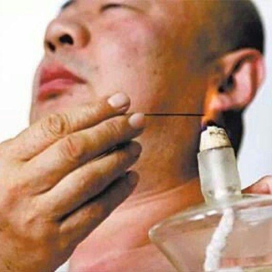 Técnica de la #Aguja de #Fuego. En esta técnoca se utilizan unas agujas especiales de #tungsteno que aguantan muy bien el calor, no se pueden utilizar agujas de acupuntura normales. Se aplica la llama de un mechero de alcohol a la aguja y cuando esta al rojo vivo se puntura de forma rápida al paciente y se retira la aguja. No es doloroso, el paciente apenas nota algo similar a una picadura de un mosquito. Esta técnica es muy efectiva para sindromes de deficiencia.