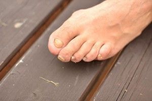 http://mkthlth2.digimkts.com  I felt so disgusting until I found this  toe fungus treatment  5 Home Remedies For Nail Fungus