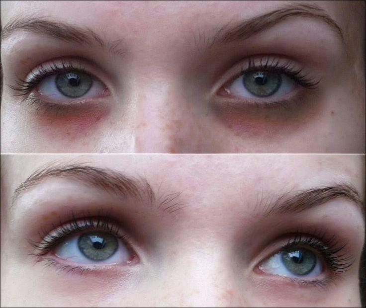 Resultado de imagem para DICAS TERAPÊUTICAS -  Como combater as olheiras