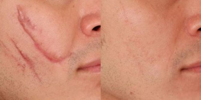At the point when skin is harmed, stringy tissue, known as scar tissue, creates over the injury to repair and secure it. This prompts the creation of scar. You can get a scar on your skin because of mishaps, bug bites, rub, skin inflammation, burns, chickenpox, piercings, surgical cuts and immunizations. Scars come in all …