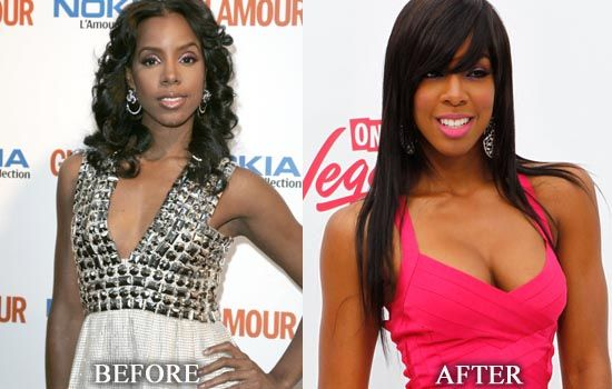 E Breast Implants Before And After Black Celebs & Pse...