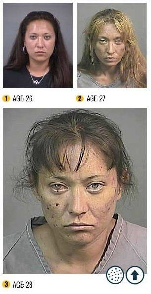 7 Not Safe For Life Photos That Will Convince You Never To Try The Horror Drug Krokodil