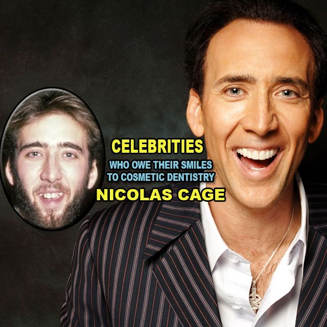 You won't believe these 18 #celebrities who owe their #smiles to #cosmetic #dentistry MORE ON OUR WEBSITE. LINK IN BIO. #nicolascage