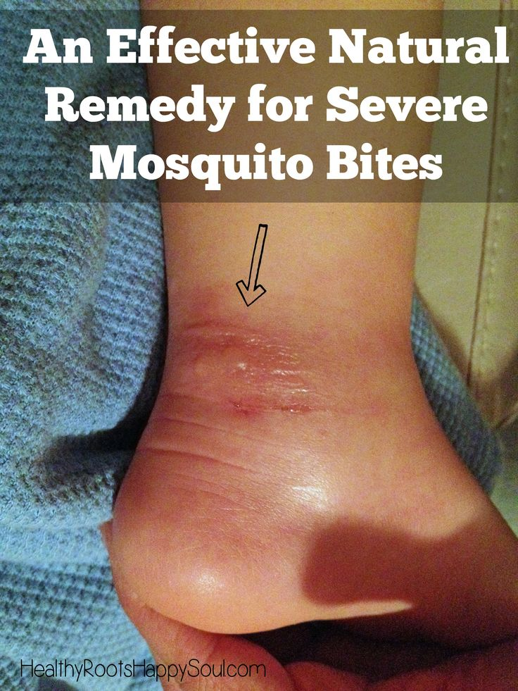 Finally!!! An Effective Natural Remedy for Severe Mosquito Bites. I couldn't believe how well this worked for my son!