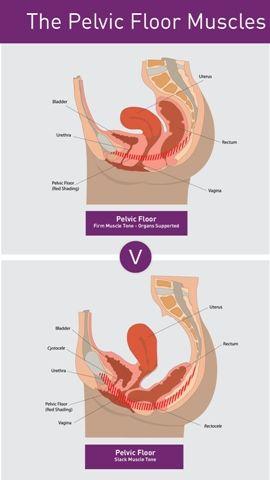 Interstitial cystitis and orgasm