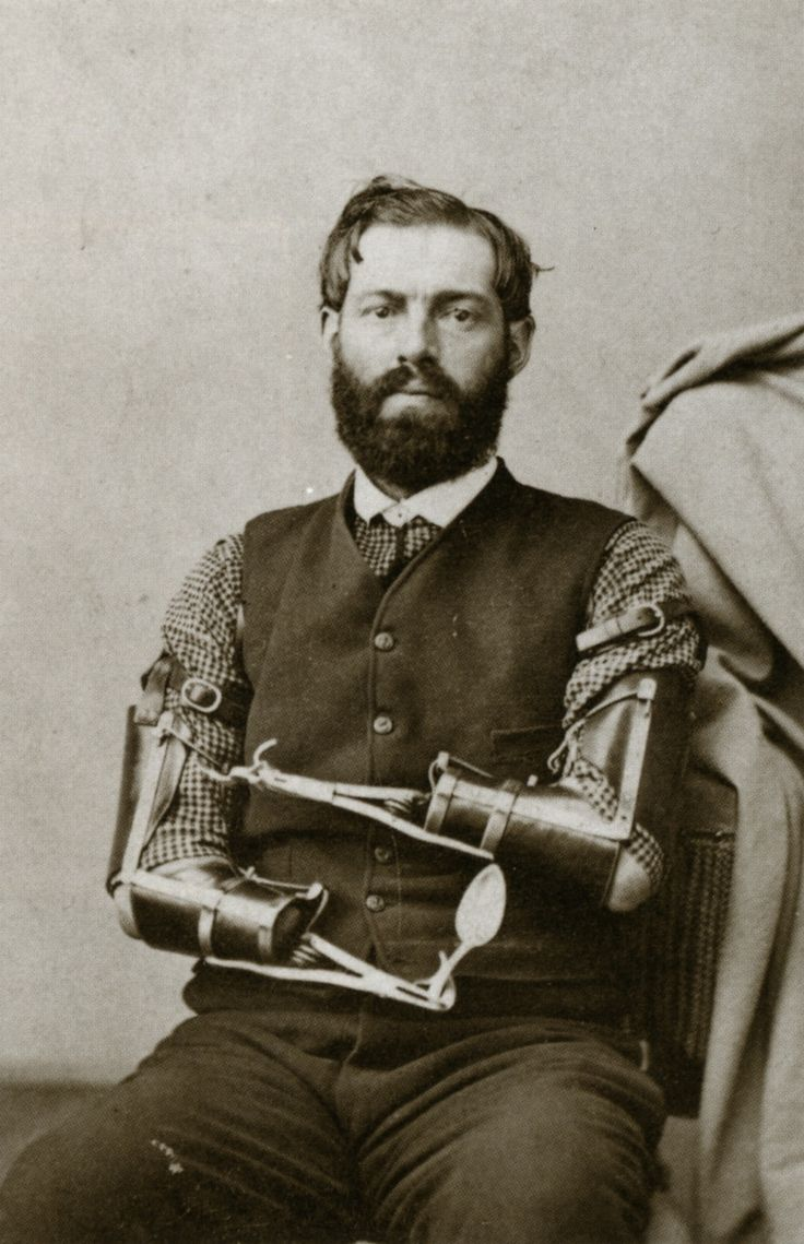 The prevalence of amputation during the Civil War created a need for prosthetic devices. Civil War veteran Samuel Decker built his own prosthetics after losing his arms in combat.