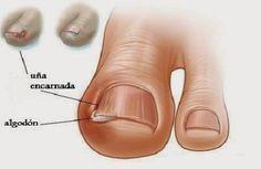 Tratamiento de uñas encarnadas