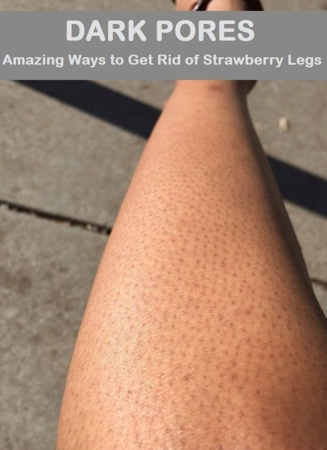 How to Get Rid of Strawberry Legs (Dark Pores on Legs)