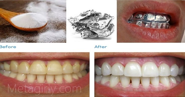 This at-home method for whitening your teeth will knock your socks off.  The magic ingredient? Tin foil.  Make a paste of baking soda, salt, and water,