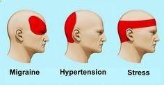 Lorsque vous avez un mal de tête, vous avez peut-être le réflexe de courir vers le paracétamol ou laspirine. Mais sachez quil existe une façon scientifique de se débarrasser dun mal de tête : lacupression.Il sagit dune sorte de massage dont lefficacité a été confirmée par de nombreuses études scientifiques. De par sa nature, cest une forme dacupuncture et de réflexothérapie mais qui nexige aucune connaissance médicale spécifique.Comment masser...