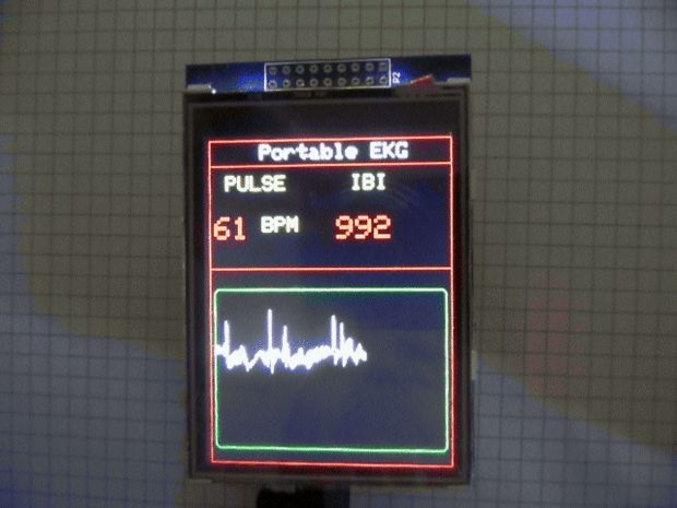 Build a Portable EKG / ECG Monitor for less than 70U$!What a great time it is to be a maker! The proliferation and popularity of Open source hardware and software,...