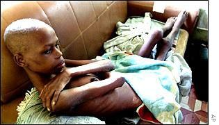 HIV/AIDS is a major public health concern and cause of death in many parts of Africa. Description from pixgood.com. I searched for this on bing.com/images Government of the United Kingdom    Government of the United Kingdom  Her Majesty's Government, commonly referred to as the UK government or British government, is the central government of the United Kingdom of Great Britain and Northern Ireland. .    Wikipedia   Official website Nominations: Academy Award for Best Documentary Feature…