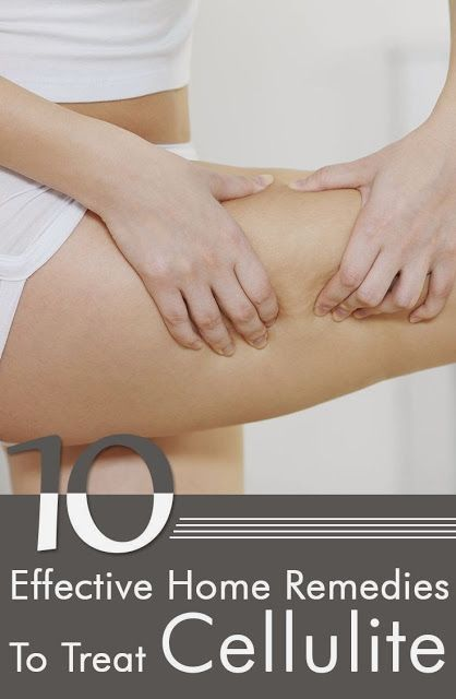 10 Effective Home Remedies To Treat Cellulite
