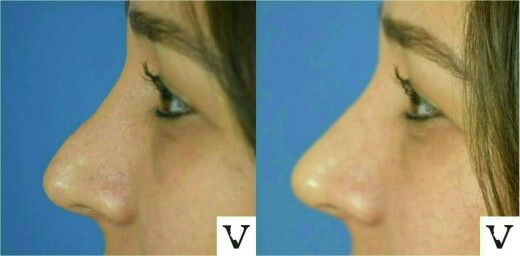 This pretty girl suffered from incomplete rhinoplasty, we fixed it with a little filler, I love that smile on the face of my patient! #rhinoplasty #nosejob #alternative #injection #expert #newton #asymmetry #correction #reconstruction #hiv #lips #eyes #beauty #taste #youth #young #proportion #selfesteem #juvederm #belotero #merz #galderma #allergan #botox #sculptra #chin #augmentation #jaw #reduction #face #slimming