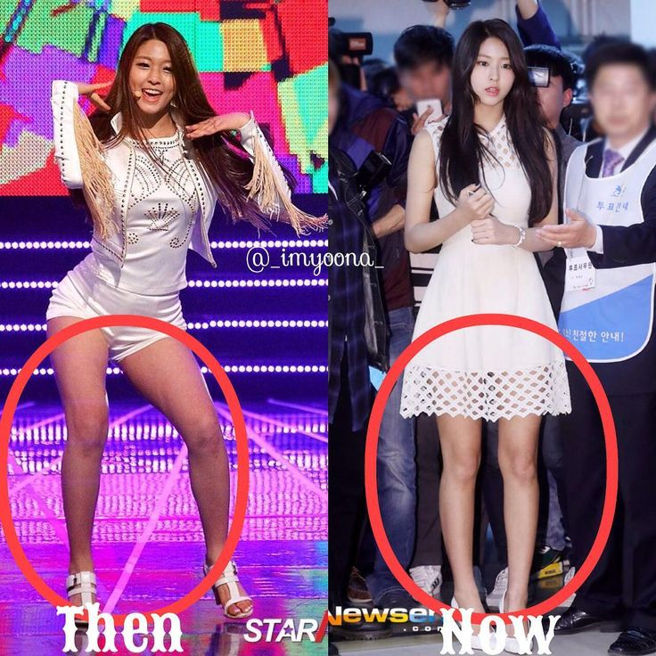Legs!!! #then and #now Omg #Seolhyun lost a lot of weight ...