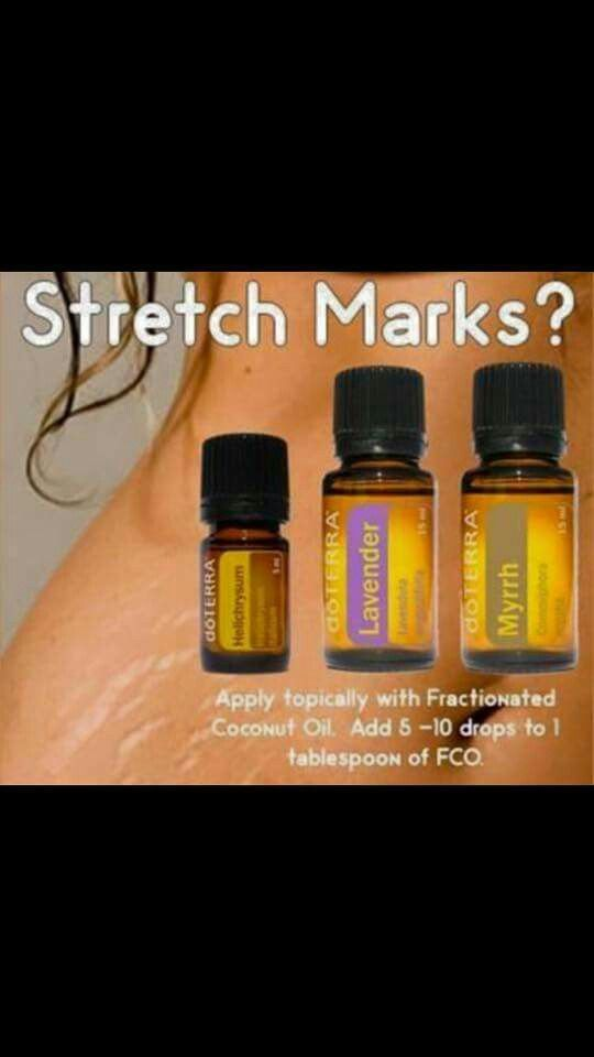 1000 Images About Essential Oils Stretch Marks On
