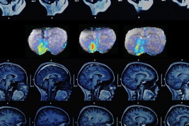 Nuevo sensor de RMN permite mapear la actividad neuronal con precisión molecular.